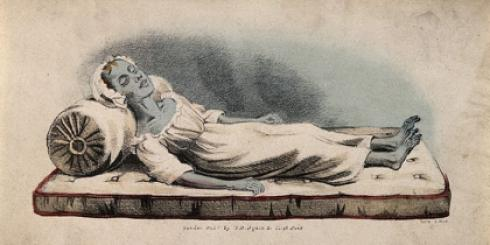 Drawing of woman Cholera victim lying on a mattress